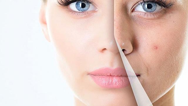 tinh dầu trầm hương giúp trị sẹo