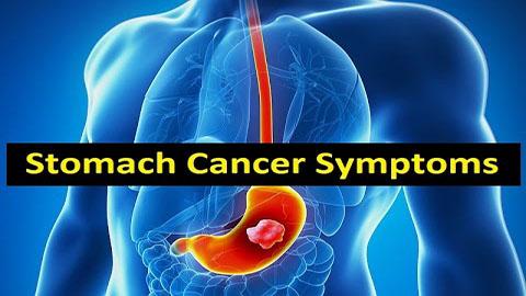 Ung thư dạ dày có chữa được bằng fucoidan