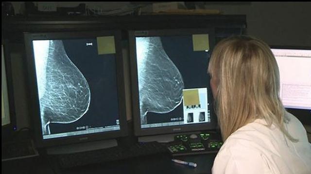 Tỷ lệ sống của ung thư vú