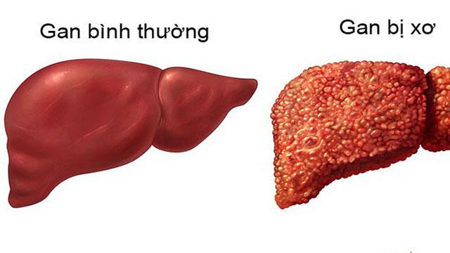 Bệnh ung thư gan: điều trị với fucoidan