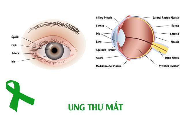 Ung thư mắt