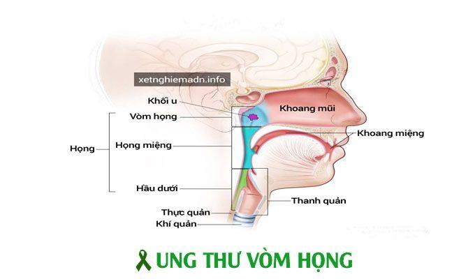 Ung thư vòm họng